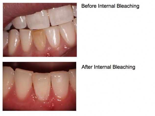 Internal Bleaching