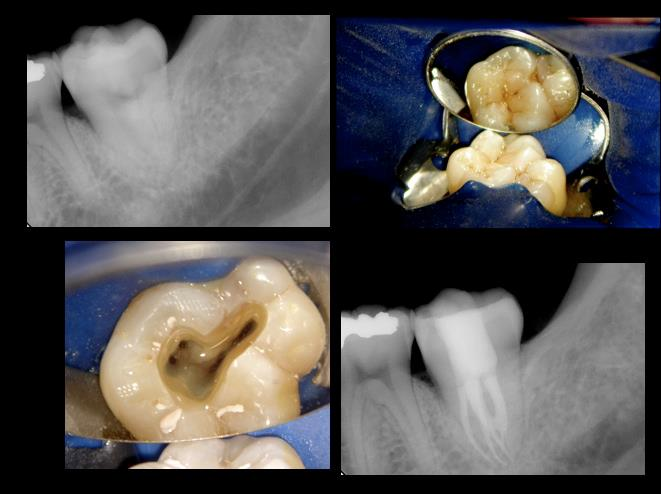 molar tooth pain - 661×494