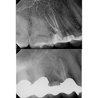 3 and 4 canal premolars on