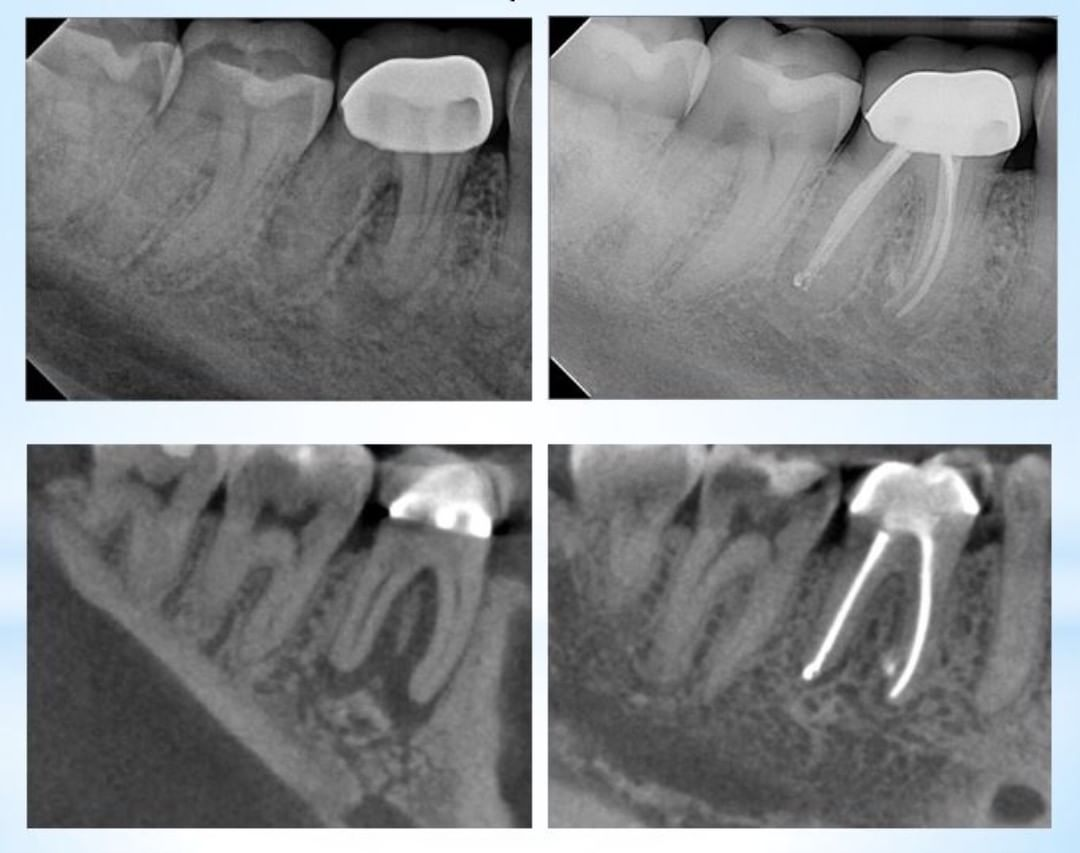 Six month recall of a Nec/CAA case. This case probed to the apex on both roots, and predictable healed following . Shaped to a V-taper 30, irrigation with