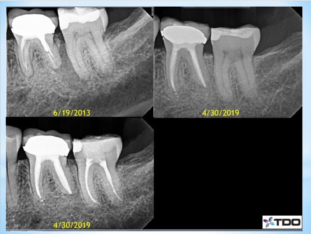 This patient came in the other day for RCT #18 due to irreversible pulpitis. This gave us a 6-year recall on tooth #19, which I treated in 2013. . In 2013 she was referred to me to evaluate #18 for a possible vertical root fracture that the dentist suspected due to an isolated probing to the apex on the mesial root. . My thoughts today are that this patient is lucky because many dentists would have extracted #18 thinking it had a , placed a , then later extracted #19 when they found out it was failing and placed another implant. She is so much happier to keep her natural teeth. – Im also glad to see how much more conservative endodontic shapes have become. I likely used in 2013, and the shapes from last week are