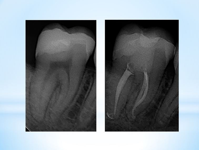 The goal of is to remove becteria and debris from the root canal system, without damaging the tooth in the process, and preventing new bacteria from coming in.  Root canals will fail for certain reasons that are completely avoidable such as missed canals and leaking temporary restorations. The risk of other factors such as inadequate disinfection and future root fracture can be significantly minimized with the right treatment strategy. . Anatomy of predictable Endodontics: ✅Pre-op CBCT to ensure no anatomy will be missed or shaped inappropriately ✅Conservative shapes with files preserving pericervical dentin and maintaining the s-curve ✅Thorough disinfection with ✅3D with and sealer ✅immediate coronal seal. ✅perfectly fit existing crown by an excellent restorative dentist