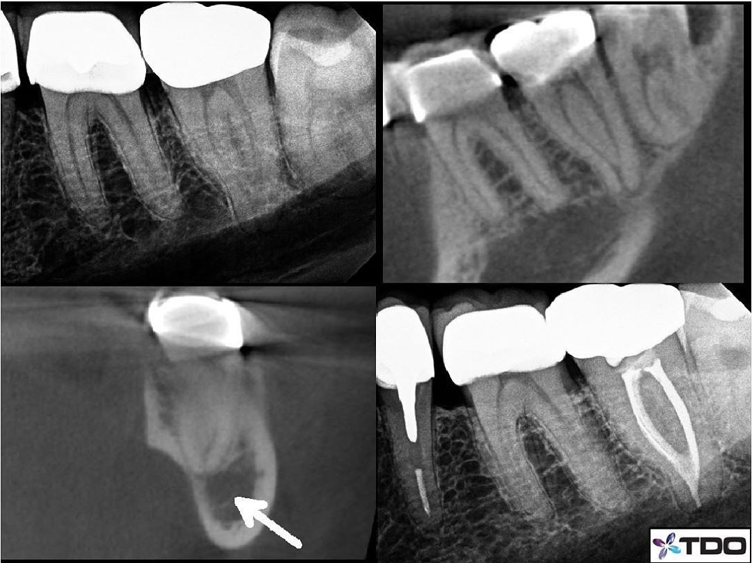 The perfect scenario. This is a complex C-shaped root canal system with a lot of anatomy that files wouldn't touch. Irrigation is probably more important in this case type than most. Length control is critical because the apical construction is far from the radiographic apex. It is in fact divergent if you are only using a PA for length determination, and it happens to be right over the Inferior alveolar nerve. This makes for a risky situation for positive pressure irrigation and obturation. In this situation negative pressure irrigation is the way to go. In the past, I would have treated this case with endovac, but would have created apical shape to fit the microcannula, risking loss of the apical construction, potentially leaving a more divergent apex over the IAN.  In this case I was able to keep the files far short of the apex and allowed the GW to thoroughly clean out the entire system, then comfortably obturated to the natural apical construction