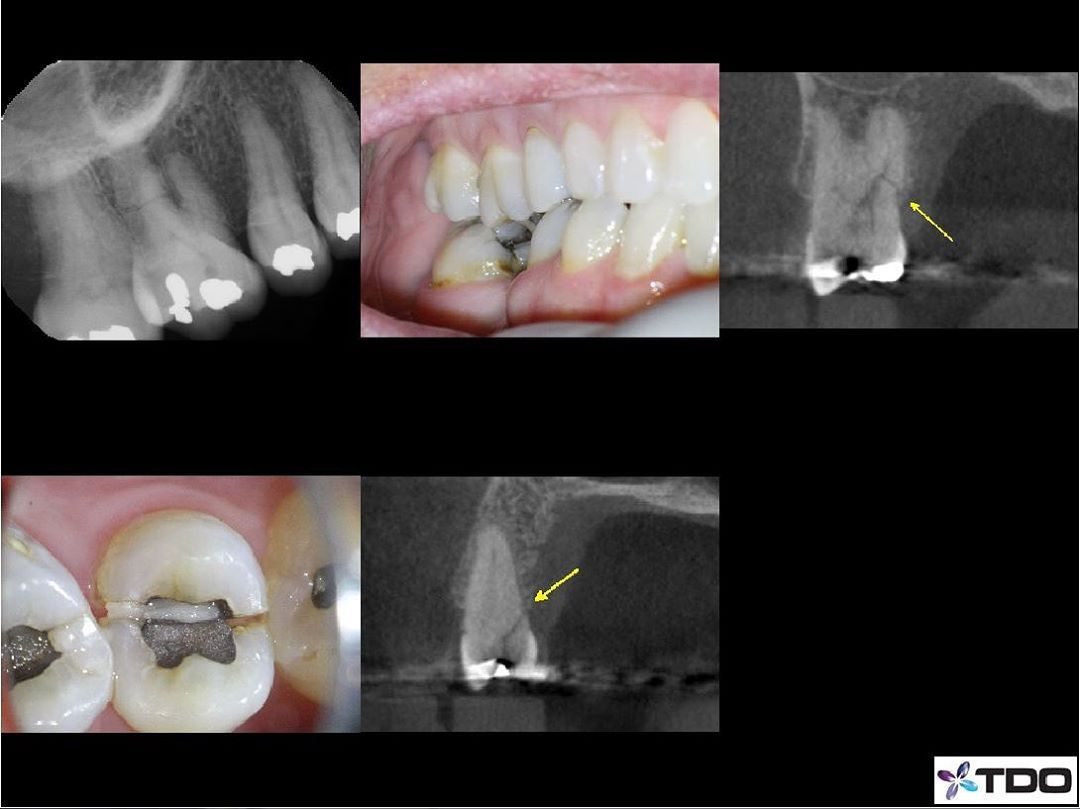 I saw my friend @karenpotterdds post about a molar HRF earlier today, then this patient walked in the door after. As far as I can recall it's the first HRF on a molar I've seen.  What are the odds?–This patient came in for #4, which has a split tooth that happened when she was eating the other day. This tooth will be extracted. –The PA and CBCT also show a on the P root of #3. Pt hasn't had an opposing tooth for a decade. She denies a history of trauma. This tooth is asymptomatic and has a healthy vital pulp. The fracture pattern is favorable, remaining subosseous, preventing infection. No treatment is recommended for #3