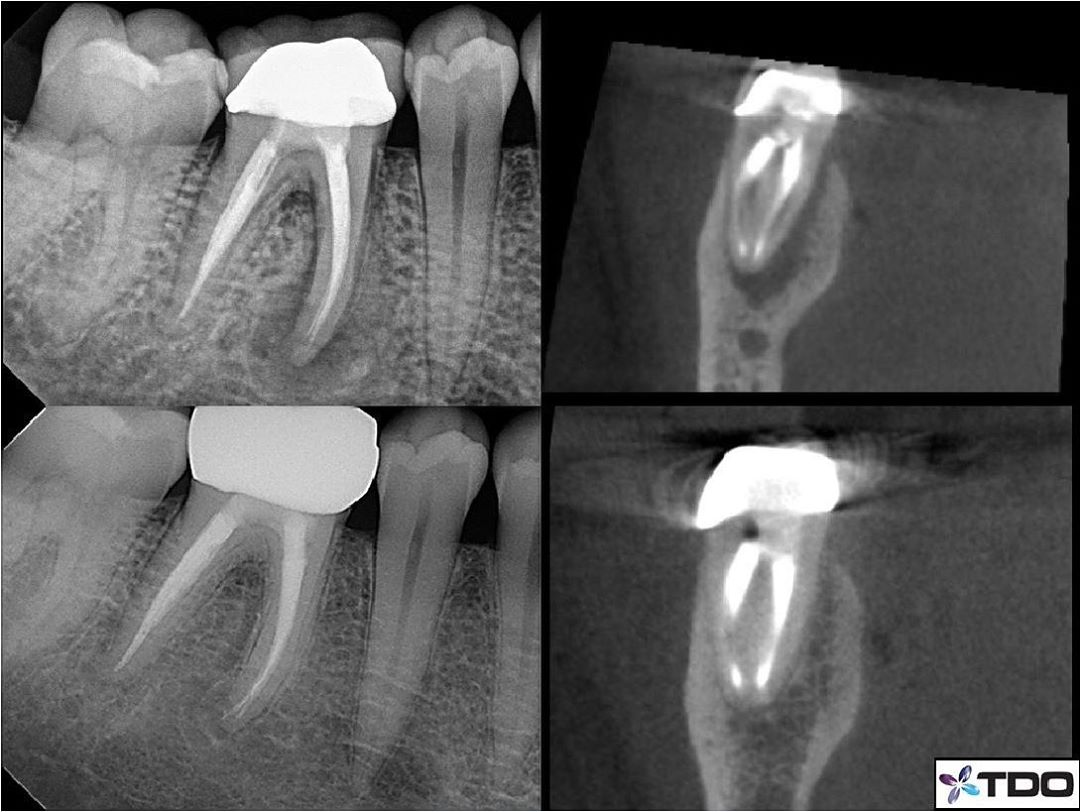 Previous RCT ✅Deep, narrow probing ✅J-shaped radiolucency ✅Vertical root fracture 🚫–Another save, thanks to this patients for referring. The first step in these cases is to look to see if a fracture is present, not extracting after guessing one is present. After accessing and confirming no fracture is present, then this becomes a very predictable retreatment case. Bottom images show good healing at 8 month recall